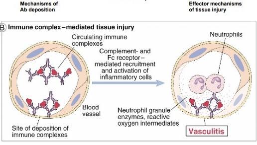 Hipersensitivitas tipe 3