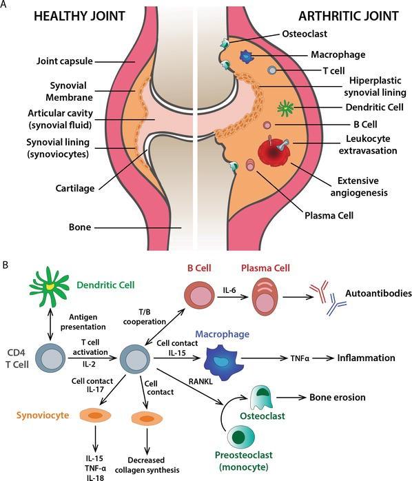 Patofisiologi Rheumatoid Arthritis