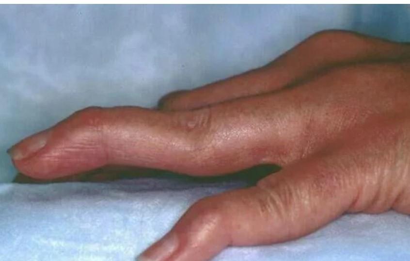 Manifestasi Rheumatoid Arthritis