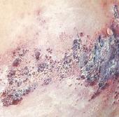 Gejala klinis herpes zoster 2