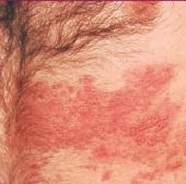 gejala klinis herpes zoster 1