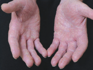 Dermatitis Kontak Iritan
