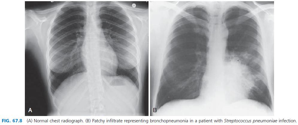 radiografi pneumonia