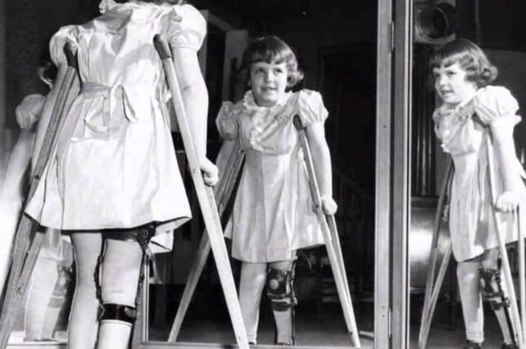 Penderita Poliomielitis