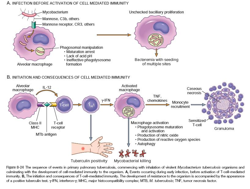 patofisiologi tuberkulosis