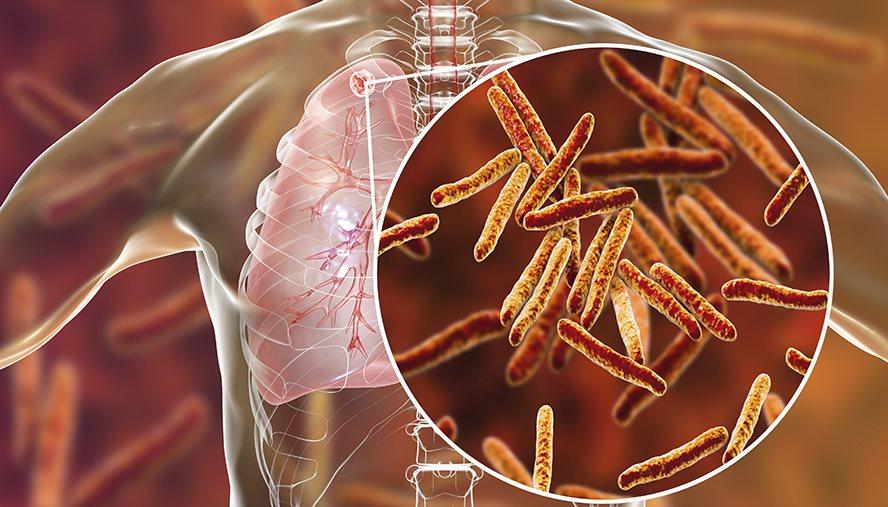 https://www.nationaljewish.org/conditions/tuberculosis-tb/risk-factors