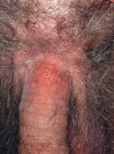gejala herpes simpleks 4
