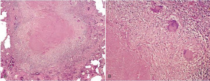 biopsi tuberkulosis