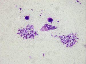 toksoplasma gondii