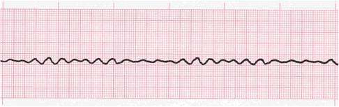 EKG pada FV