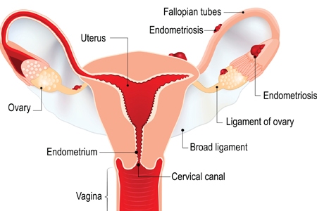 https://www.honorhealth.com/medical-services/gynecology/gynecology-symptoms-conditions/endometriosis