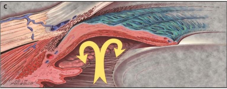 glaukoma3Skema glaukoma sudut tertutup