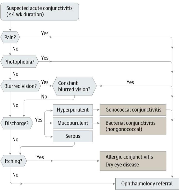 Algoritma diagnosis konjungtivitis