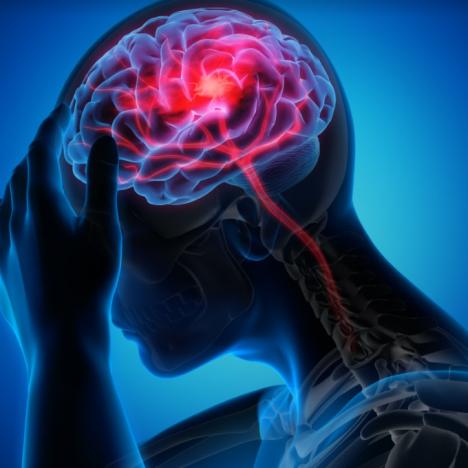 mengurangi angka kematian stroke