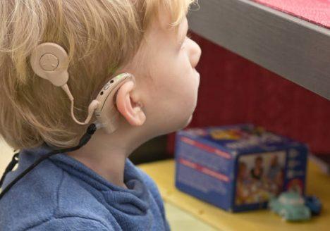 Implantasi koklea